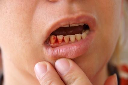 Nhiều ngườivẫn thường hay bị chảy máu răng bất chợt. Nhất là mỗi khi đánh răng hay xỉa răng chị lại thấy các chân răng rỉ máu.