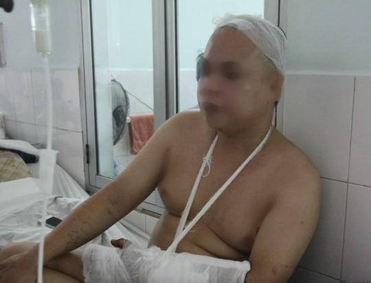 Nạn nhân M. đang điều trị tại bệnh viện (Ảnh: Người lao động)