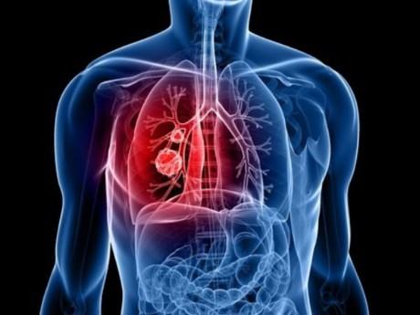 Tăng cường hệ tim mạch: Sử dụng chuối thường xuyên sẽ giúp bạn chống lại cơn đau tim và đột quỵ.