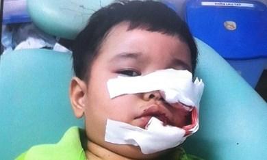Hình ảnh bé Thịnh được các bác sĩ băng bó vết thương ở mặt