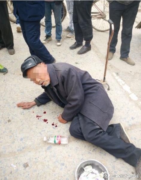 Ông cụ 80 tuổi nằm lê ra đường xin tiền với vài giọt máu tươi phía trước mặt.