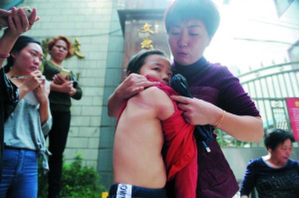 Một phụ huynh học sinh đang cho mọi người xem lưng và vai con mình bị thầy giáo đánh.