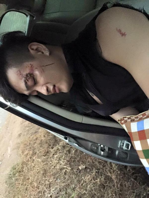 Thành viên Titi bị thương nghiêm trọng.