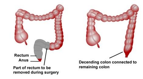 Phẫu thuật là một trong số những phương pháp điều trị ung thư trực tràng. Ảnh minh họa