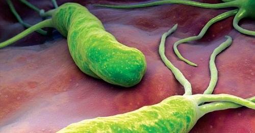 Hình ảnh đáng sợ về kẻ gây nên bệnh ung thư dạ dày: Vi khuẩn HP