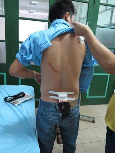Vết thương của nhà báo Ngọc Quang