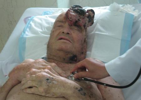 Bệnh nhân gout giai đoạn cuối