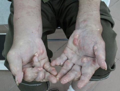 Bàn tay viêm sưng của người bệnh gout