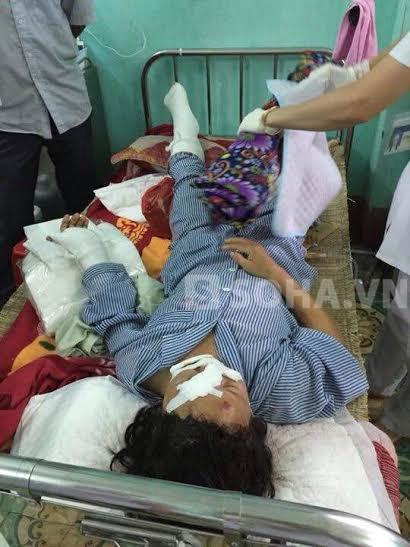Nạn nhân Dương Thị H. đang được cấp cứu tại bệnh viện.