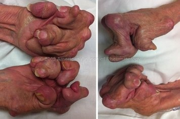 Tay của người bệnh gout giai đoạn cuối
