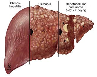 Uống rượu gây ra những tổn thương ở gan dẫn đến ung thư gan.