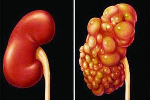 Thận bình thường (bên trái) và thận bị ung thư (bên phải)