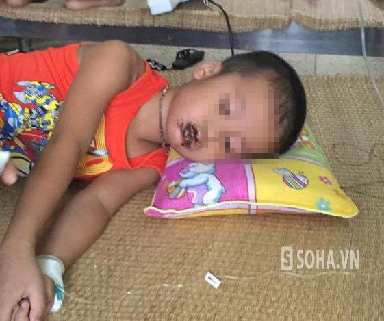 Cháu Nguyễn Công H. đang được điều trị tại Bệnh viện Nhi trung ương