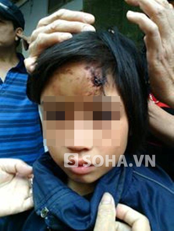 Vết thương trên đầu cháu P. khi người dân giải cứu và đưa đi cấp cứu vào sáng 11/10.