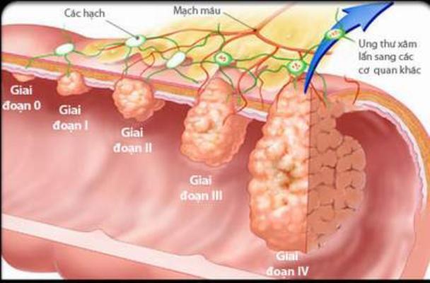Các giai đoạn của ung thư đại trực tràng.