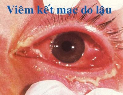 Viêm kết mạc mắt do bệnh lậu