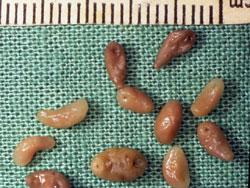 Hình ảnh sán lá gan được gắp ra từ gan người bệnh (Ảnh: Internet)