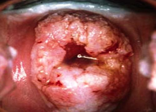 Biến chứng ung thư cổ tử cung ở nữ giới do sùi mào gà