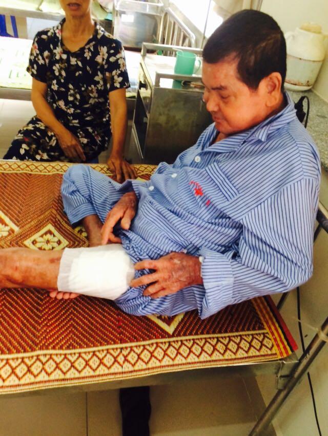 Bệnh nhân bị tiểu đường bị biến chứng ở chân (Ảnh: Lệ Nam)