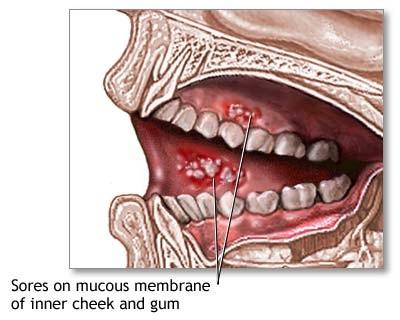Nguyên nhân không ngờ gây nên bệnh ung thư miệng
