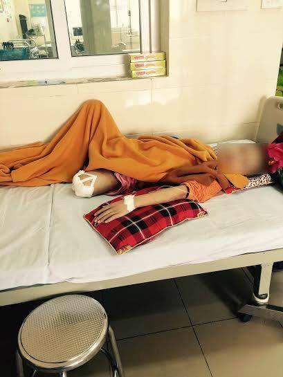 Một bệnh nhân nhỏ tuổi bị ung thư xương (Ảnh: Tiểu Nhã)