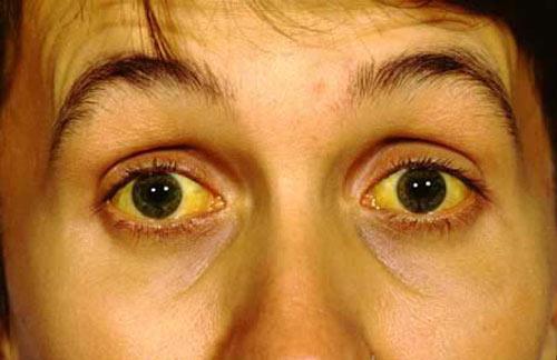 Vàng mắt, vàng da do viêm gan B