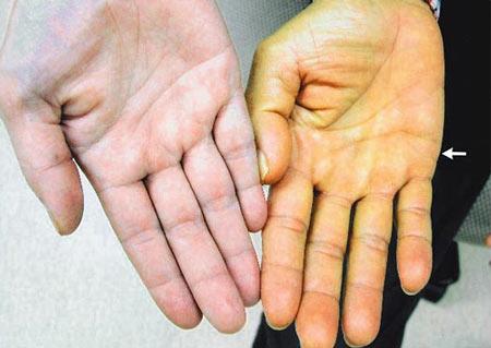 Da tay vàng do viêm gan B