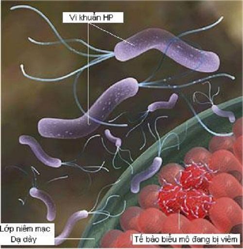 VI khuẩn HP trong niêm mạc dạ dày