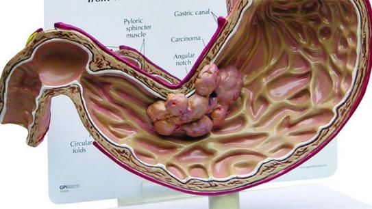 Hình ảnh về ung thư dạ dày