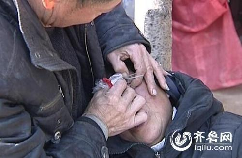 Ông Lương lấy đá ra khỏi mắt giúp vợ.