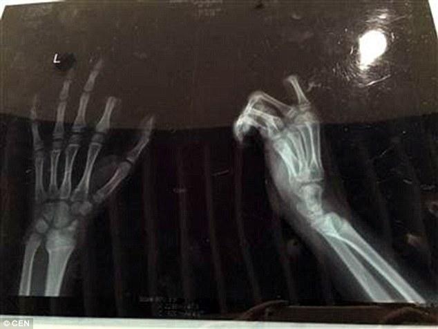 Cậu bé Peng đã lấy dao tự chặt đứt một ngón tay bên bàn tay trái.