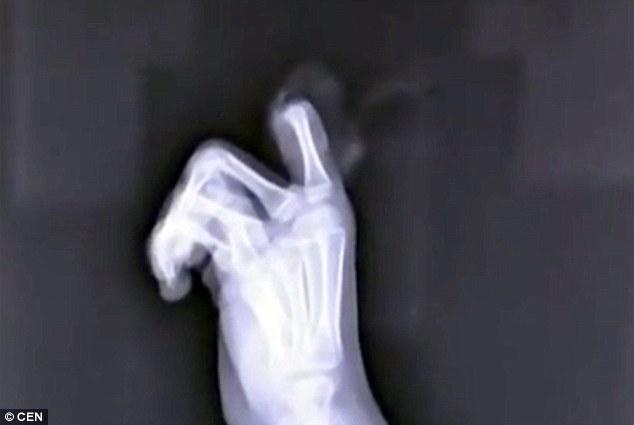 Phim X-quang chụp ngón tay bị đứt.