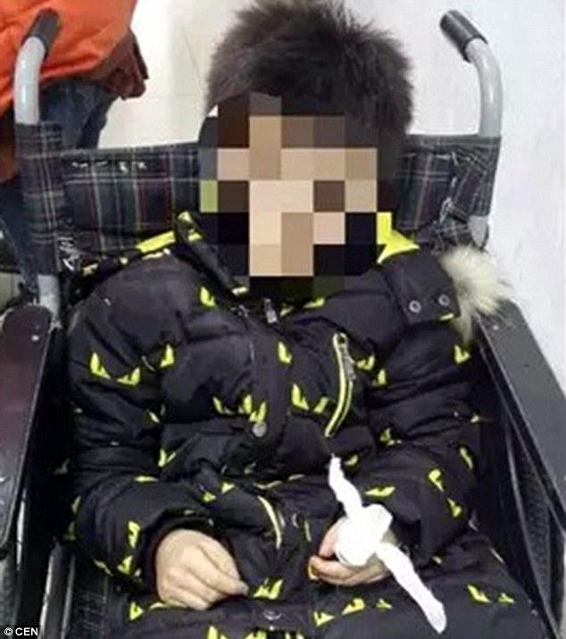 Sau 3 giờ đồng hồ phẫu thuật, các bác sĩ đã tạm nối lại ngón tay đứt lìa cho cậu bé.