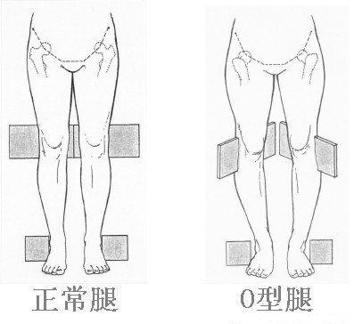 Cách phân biệt người có dáng đi vòng kiềng (bên phải) với người bình thường (Ảnh: nguồn internet).