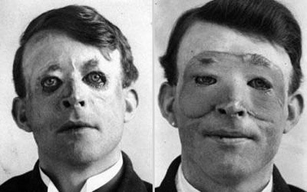 Walter Yeo, một trong những người đầu tiên trải qua một phẫu thuật thẩm mỹ tiên tiến và ghép da. Bức ảnh chụp năm 1917