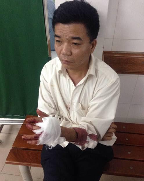 Ông Nguyễn Đoàn Bộ, nhân viên bảo vệ của Công ty Cổ phần Tu tạo và Phát triển nhà, người bị ông Tâm chém trọng thương (ảnh gia đình cung cấp).