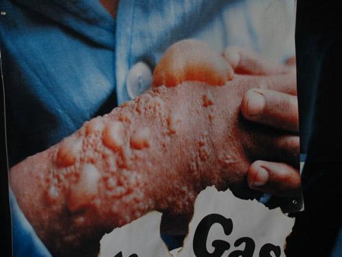 Một nạn nhân bị nhiễm khí độc trong cuộc chiến tranh Iraq-Iran