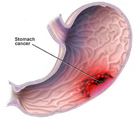 Hình ảnh ung thư dạ dày.