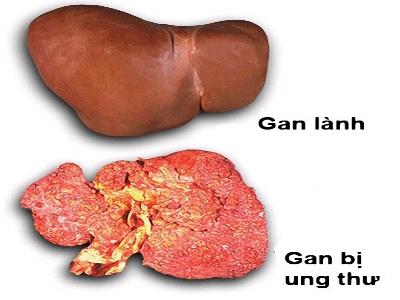 Ung thư gan nếu phát hiển sớm có thể cứu sống bệnh nhân (Ảnh minh họa)