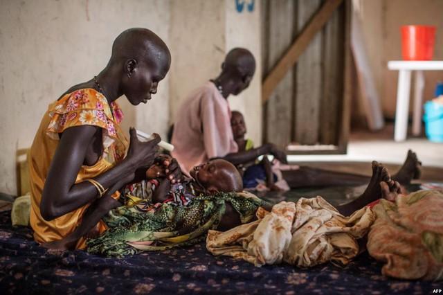 Các trẻ em suy dinh dưỡng đang được điều trị tại bệnh viện Leer, Nam Sudan.