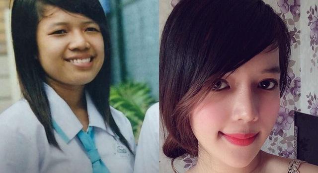Minh Yến trước và sau khi phẫu thuật thẩm mỹ