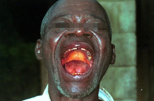 Rợn người hình ảnh chết chóc ở tâm đại dịch Ebola 7