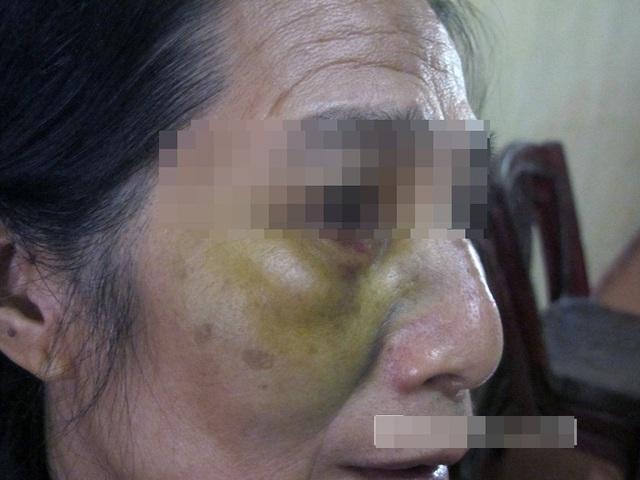 Vết thâm tím trên mắt của bà Tân đã bị Hải dùng tay đấm.