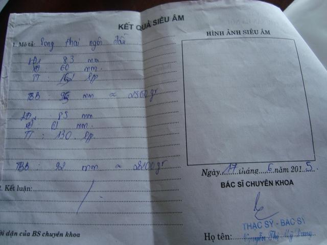 Kết quả siêu âm thai của chị Thắm tại bệnh viện Phụ sản Hà Nội (Ảnh: Hoàng Anh)