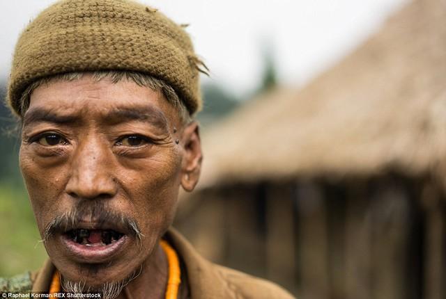 Ông Takching đã hút thuốc phiện suốt 30 năm qua. Mỗi ngày ông phải mất 20 USD để mua thuốc nên đồ đạc trong nhà ông đều đội nón ra đi.