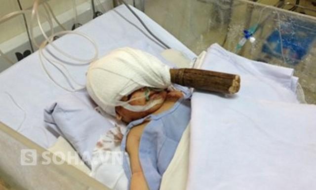 Bé trai 11 ngày tuổi bị con dao đâm vào mặt được bác sĩ bệnh viện Nhi đồng 1 mổ lấy dao an toàn
