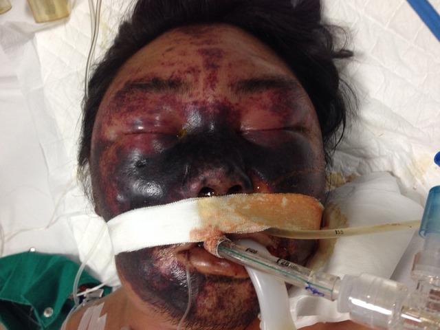 Bệnh nhân bị nhiễm khuẩn liên cầu lợn (Nguồn ảnh do bác sĩ viện Ký sinh trùng, BV Nhiệt đới Trung Ương cung cấp)
