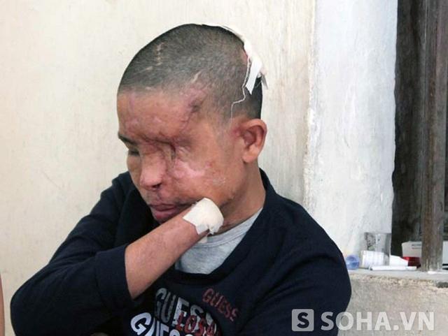 Vụ nổ mìn trên xe khách đã khiến anh Hảo bị mất 2 mắt, 2 tay. Giờ đây cuộc sống anh Hảo rất khó khăn và phải phụ thuộc hoàn toàn vào vợ mình.