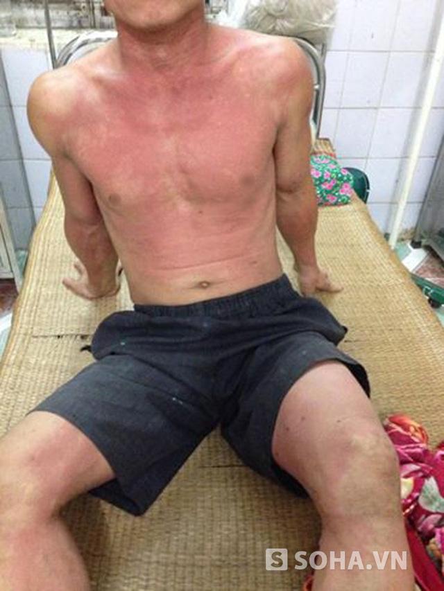 Lúc mới nhập viện, toàn thân anh Chung bị kiến cắn đau rát, nổi ban đỏ, phỏng nước.