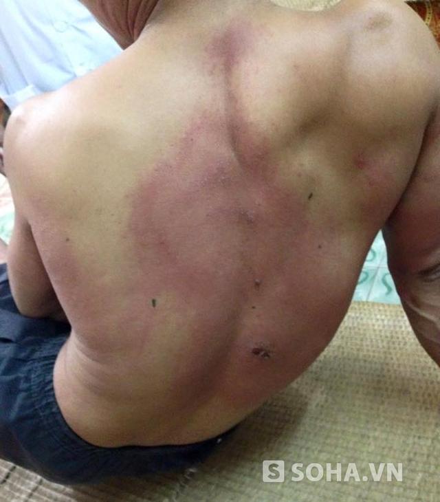 Hiện tại sau khi được cấp cứu, anh Chung đã đỡ hơn trước nhiều. Tuy nhiên các vết thương lớn do kiến để lại vẫn còn trên lưng và cơ thể anh.